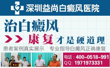 深圳治疗白癜风最权威的医院