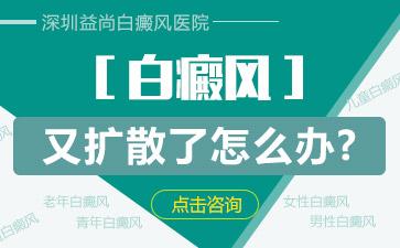 深圳益尚癜风医院